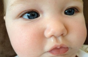 Baby Symptoms Not to Worry About